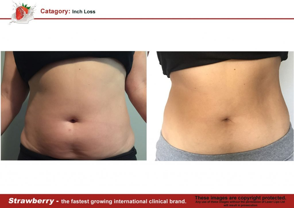 Laser Lipo Of New York Before and After 01