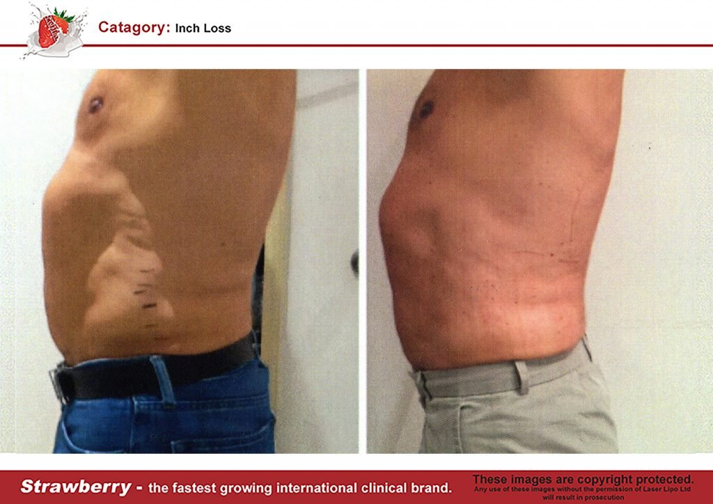 Laser Lipo Of New York Before and After 02