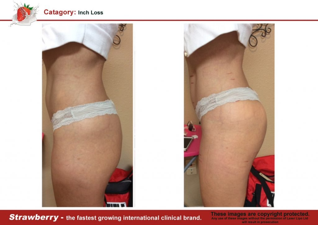 Laser Lipo Of New York Before and After 03