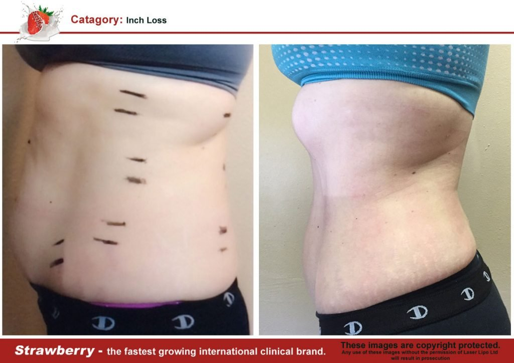 Laser Lipo Of New York Before and After 05