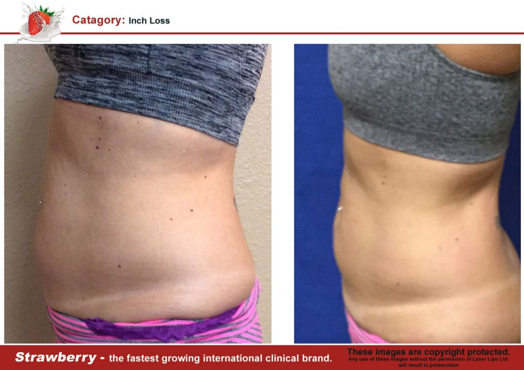 Laser Lipo Of New York Before and After 06