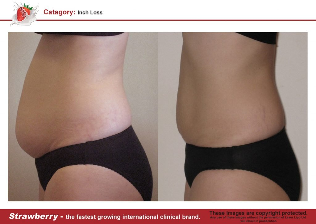 Laser Lipo Of New York Before and After 08