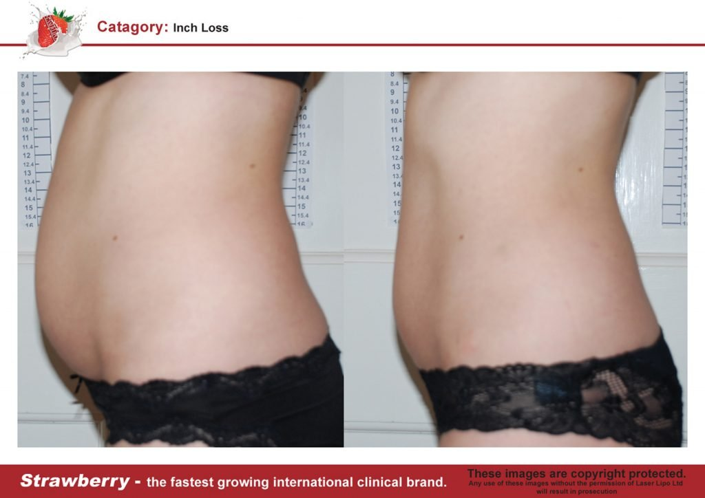 Laser Lipo Of New York Before and After 09