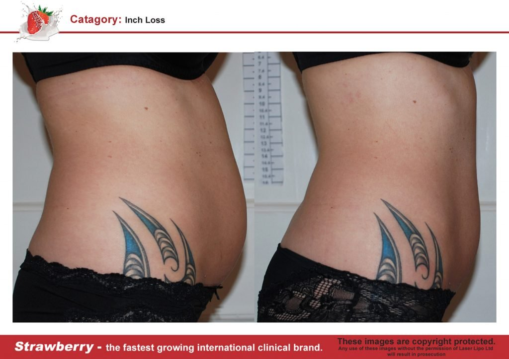 Laser Lipo Of New York Before and After 10