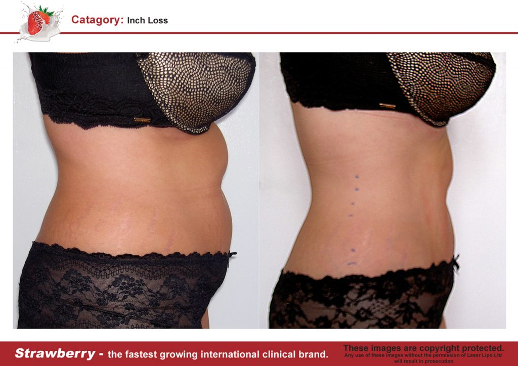Laser Lipo Of New York Before and After 11