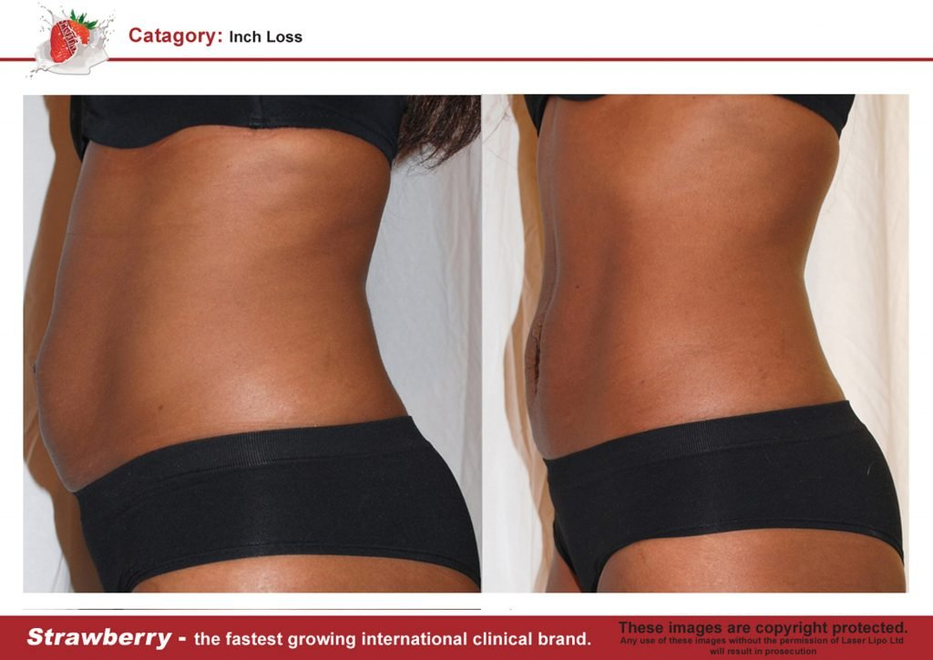 Before And After Laser Lipo New York Strawberry Laser