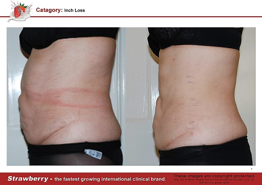 Laser Lipo Of New York Before and After 14