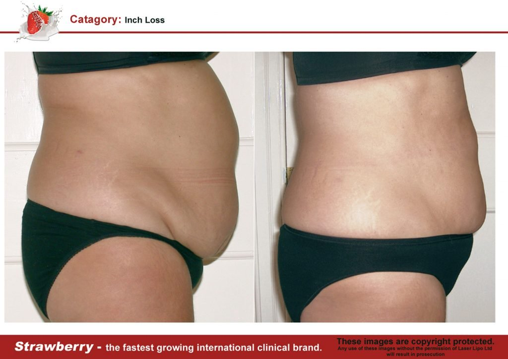 Laser Lipo Of New York Before and After 15