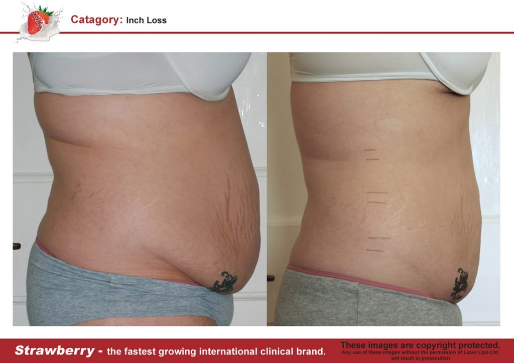Laser Lipo Of New York Before and After 16