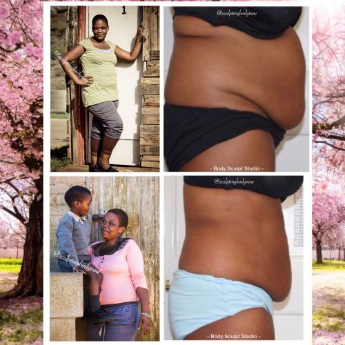 Non-Surgical Laser Lipo for Your Mommy Makeover