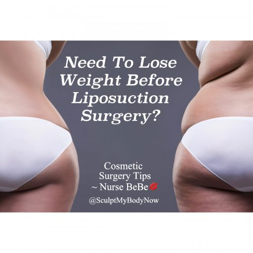 Preparing For Your Liposuction Surgery: Need To Lose Weight Before Liposuction Surgery?